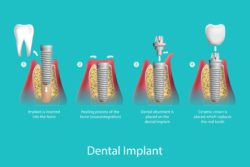 Dental Implants in Tempe