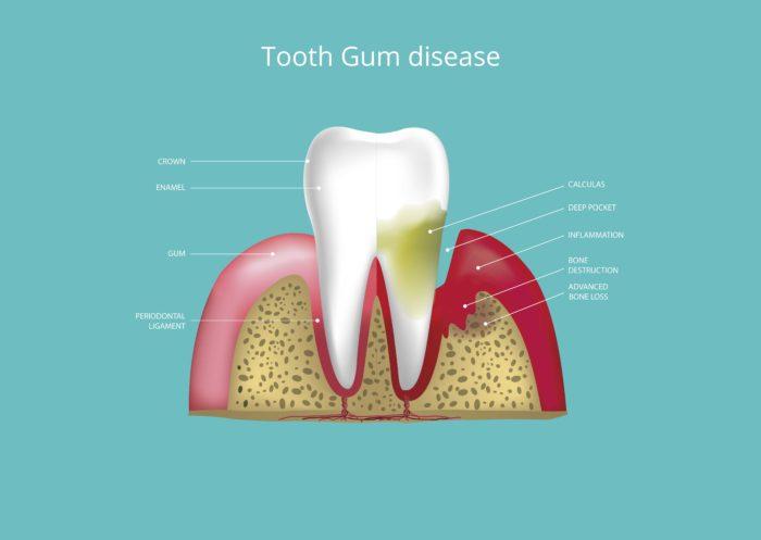 Tooth Gum Disease Treatment in Phoenix, Tempe, Glendale AZ