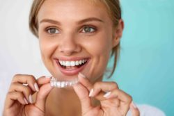 Teeth Whitening Dentist in Phoenix, Tempe, Glendale AZ