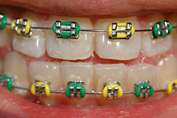 Traditional Metal Braces